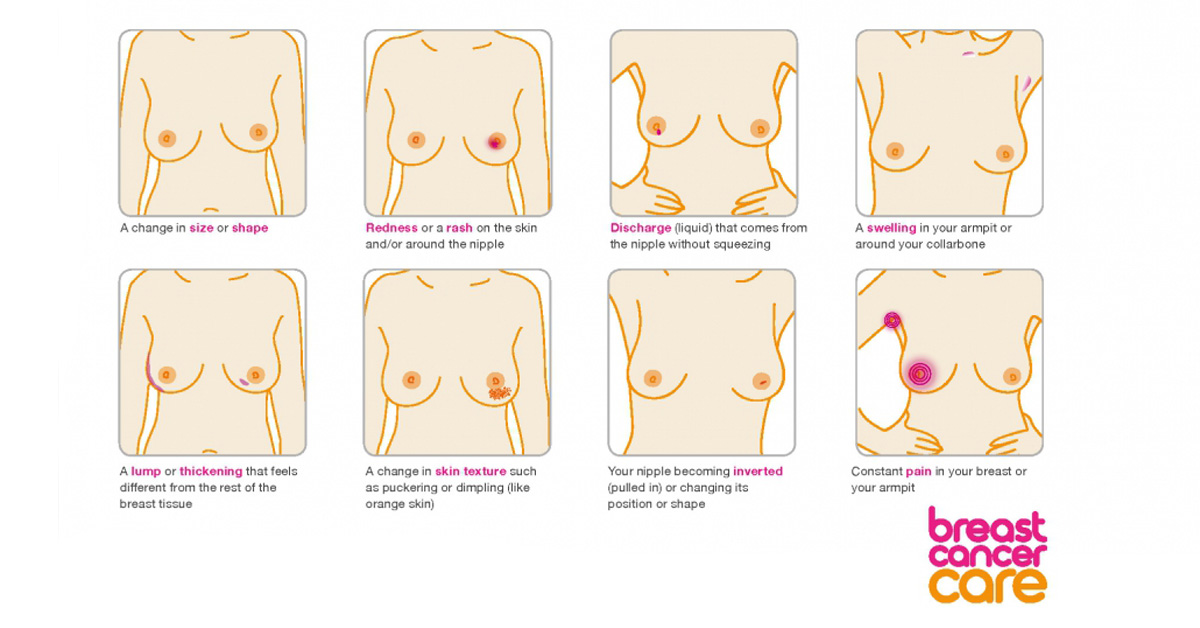 Breast cancer care signs